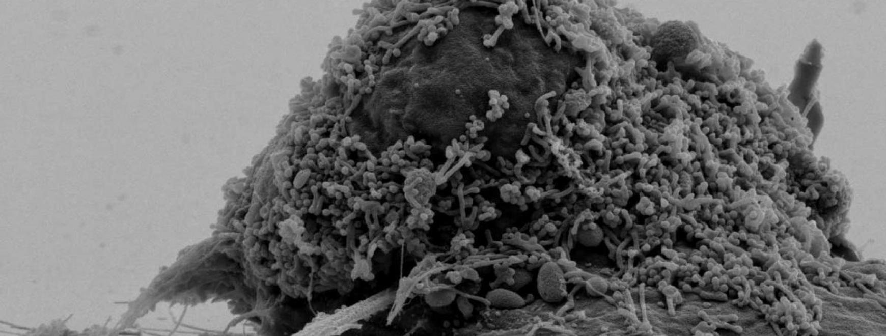 Photonic crystal cavity inside a prostate cancer cell